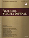 Read Dr. Taban's manuscript about Lower Eyelid Retraction Surgery without Internal Spacer to learn more.
