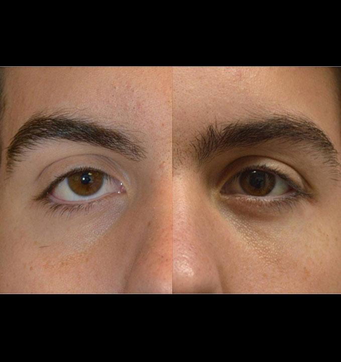 congenital lower eyelid retraction upper