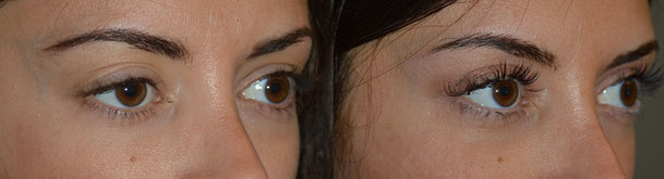 Before (left) 21 year old female, with history of 2 previous failed right upper eyelid ptosis operations. After (right) 3 months after revisional right upper eyelid ptosis surgery (using full-thickness method).