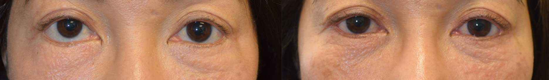 lower eyelid retraction after previous transcutaneous lower blepharoplasty