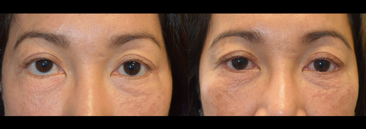 revision eyelid surgery