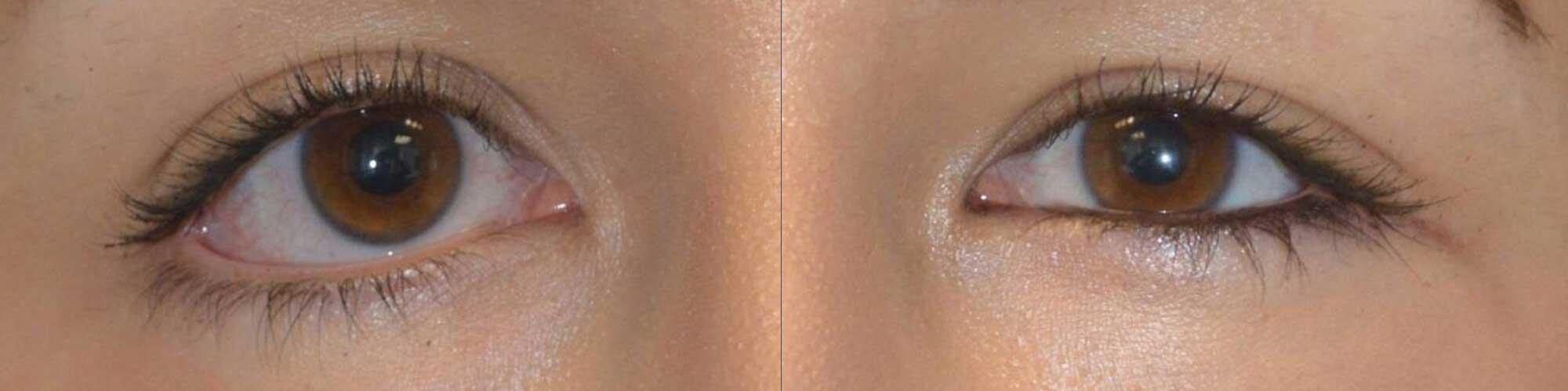 congenital lower eyelid retraction