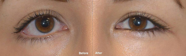Almond Eye Surgery patient