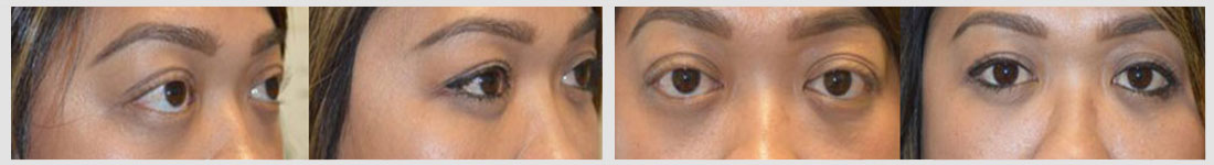 lower eyelid retraction surgery patient
