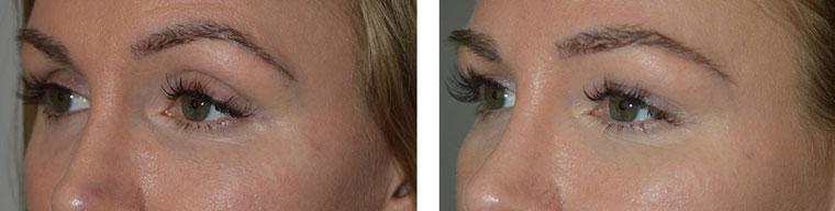 Belotero filler injection in upper eyelids