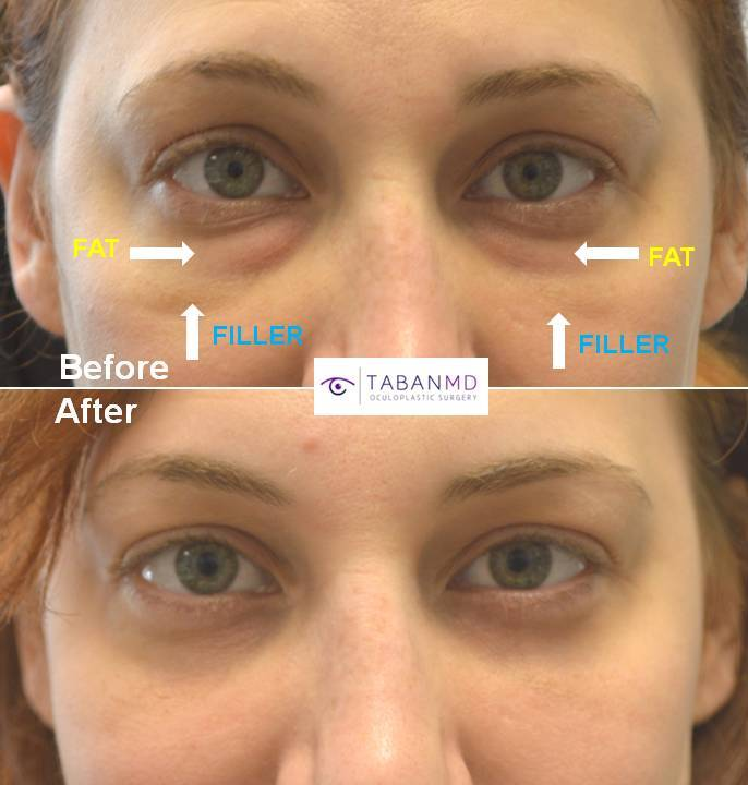 Lower Blepharoplasty Beverly Hills, Lower Eyelid Bag Surgery