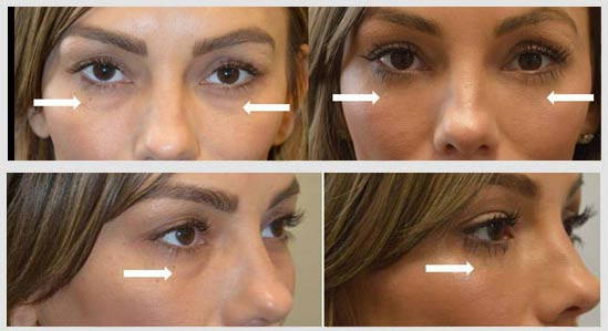 Our own office surgical coordinator (Tasha) underwent, complained of looking tired due to under eye fat bags and dark circles, needing to apply a lot of cover up makeup. She underwent transconjunctival lower blepharoplasty with fat repositioning and skin pinch. Before and 2 months after eyelid surgery photos are shown.