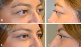 Combined Orbital Decompression and Eyelid Retraction Surgery Before and After Image