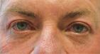Upper Blepharoplasty Before Image