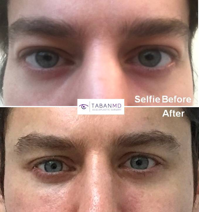 Cosmetic Orbital Decompression ( Bulging Eye ) Surgery | Dr  Mehryar