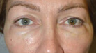 Lower Blepharoplasty with Skin Pinch Before