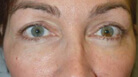 Lower Blepharoplasty with Skin Pinch After