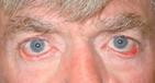 Eyelid Ectropion
