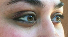Lower Eyelid Retraction Surgery with Alloderm Before Image