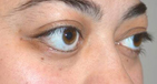 Lower Eyelid Retraction Surgery with Alloderm After Image