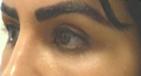 Upper Eyelid/Brow Filler Injections After Image