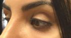 Upper Eyelid/Brow Filler Injections Before iamge
