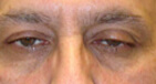 Droopy Eyelid Surgery Before