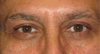 Droopy Eyelid Surgery After