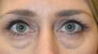 Lower Blepharoplasty Surgery Before