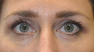 Lower Blepharoplasty Surgery After