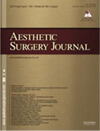 Ptosis Surgery