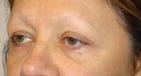 Eyebrow Lift Before