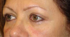 Eyebrow Lift After