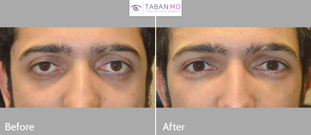 Young man, with congenital droopy lower eyelids and bulging eyes and maxillary hypoplasia, underwent lower eyelid retraction surgery with canthoplasty (almond eye surgery), scarless orbital decompression bulging eye surgery, and infraorbital rim silicone implant. Note change from negative canthal tilt (downturned eyes) giving sad eye appearance to positive canthal tilt (upturned eyes) giving more youthful eye appearance.