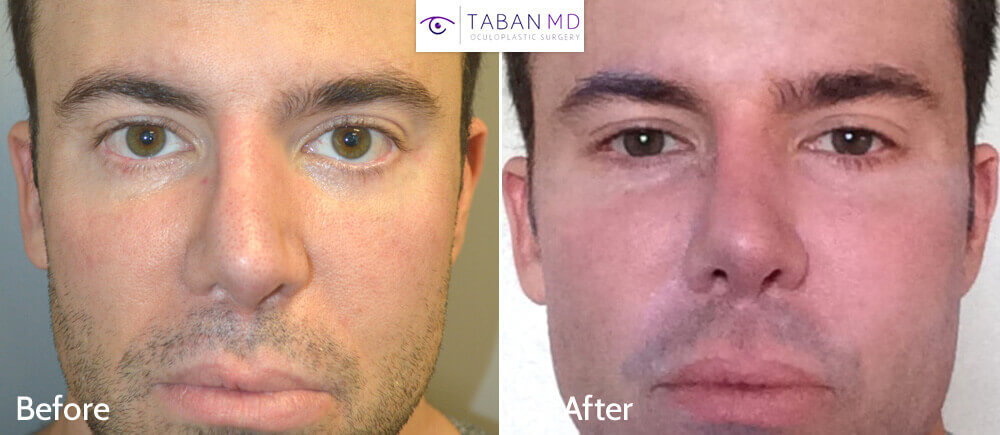 Young Caucasian man underwent infraorbital silicone implant plus lower eyelid retraction surgery with canthoplasty (