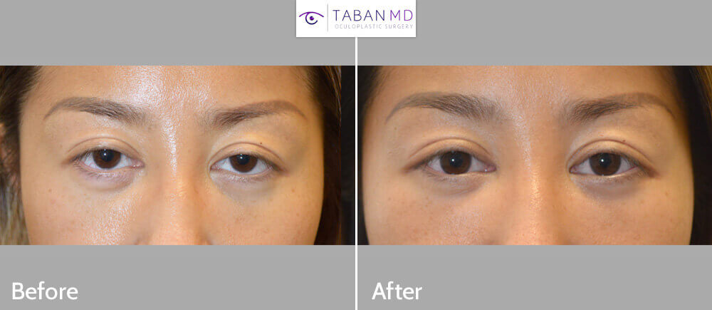 Young Asian woman underwent cosmetic orbital decompression, infraorbital rim silicone implant, lower eyelid retraction surgery with canthoplasty and droopy upper eyelid ptosis surgery. Note more almond shaped eyes in after photos.