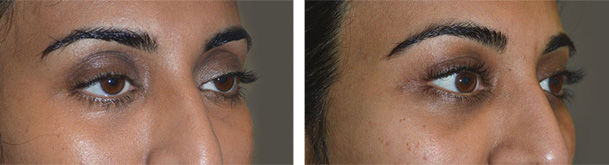 Before (left) 32 year old female, with droopy upper eyelids (ptosis). After (right) 3 months after cosmetic droopy upper eyelid (ptosis) surgery and fat injection.
