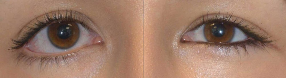 32 year old female, with congenital lower eyelid retraction and canthal dystopia with mongloid slant, underwent Almond Eye Surgery (lower eyelid retraction surgery, soof lift, spacer graft, canthoplasty). Before and 3 months after almond eye surgery photos are shown.