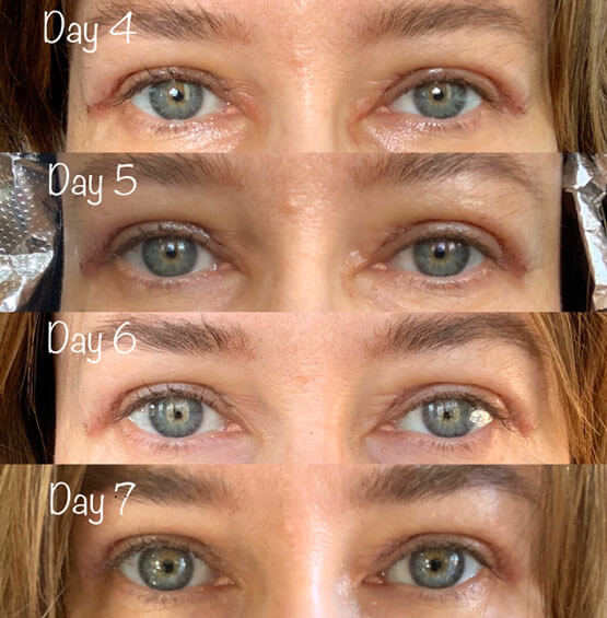 Photos show the average healing of UPPER BLEPHAROPLASTY during the first one of surgery.