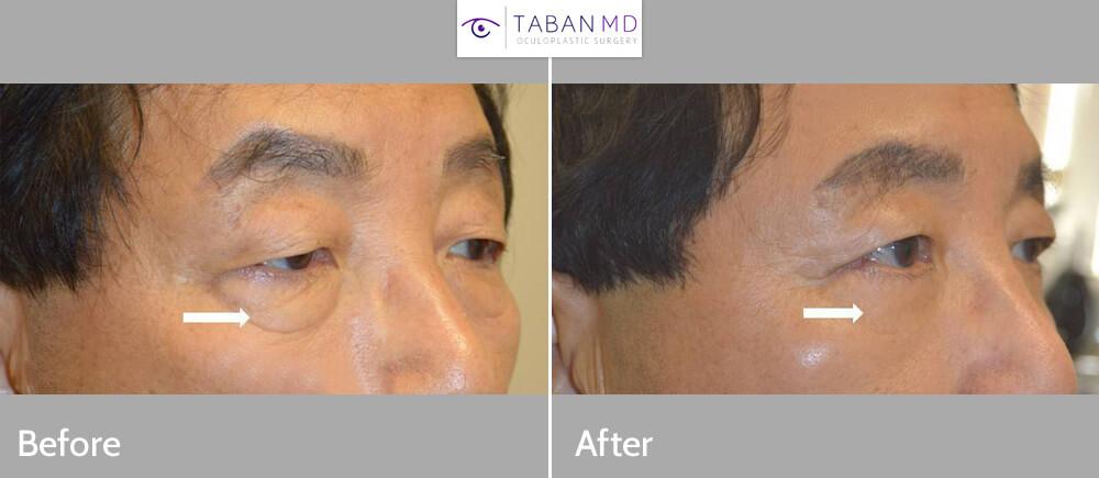 70+ year old Asian male, underwent cosmetic lower blepharoplasty and droopy upper eyelid ptosis surgery. Note more rested eye appearance.
