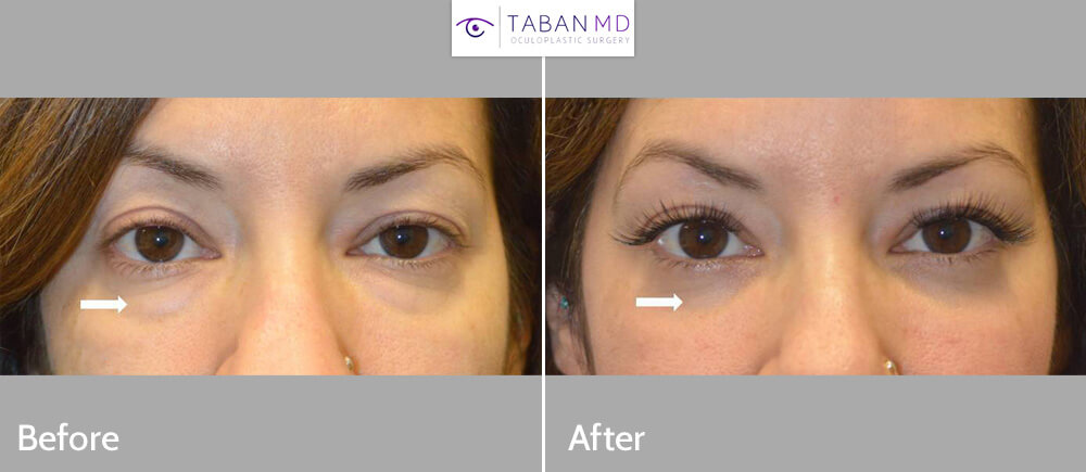 Before/after photos of a beautiful woman who underwent lower blepharoplasty (transconjunctival technique with fat repositioning, skin pinch) to correct under eye fat bags.