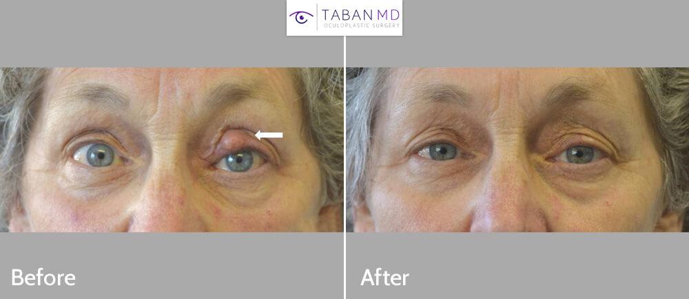 70+ year old woman underwent left upper eyelid chalazion (stye) removal.