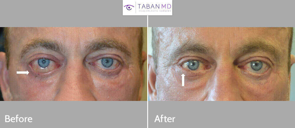 40+ year old man, with severe cicatricial lower eyelid retraction (due to previous botched lower blepharoplasty) underwent revision lower eyelid retraction repair with internal alloderm graft and external skin graft plus bulging eye orbital decompression surgery. Note the resolution of the eyeball swelling (chemosis)