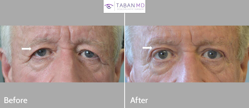 70+ year old man, with significant saggy upper eyelids and brows, underwent upper blepharoplasty and brow lift, with improvement of peripheral vision.