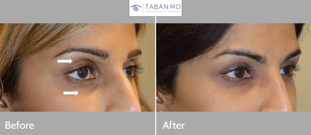 Before and 2 years after upper eyelid and under eye filler injection in a beautiful young woman with genetic sunken hollow eyes.