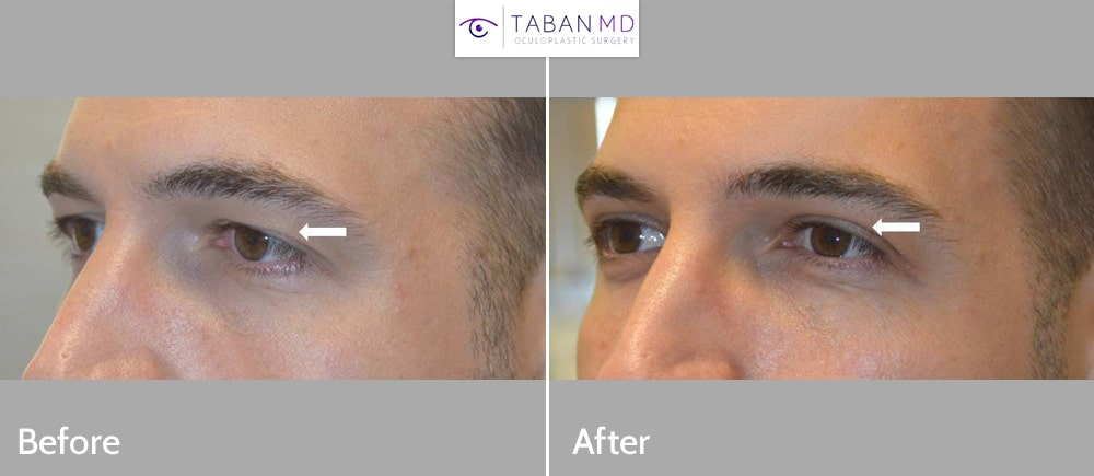 Young man underwent male upper blepharoplasty to improve saggy hooded upper eyelids.