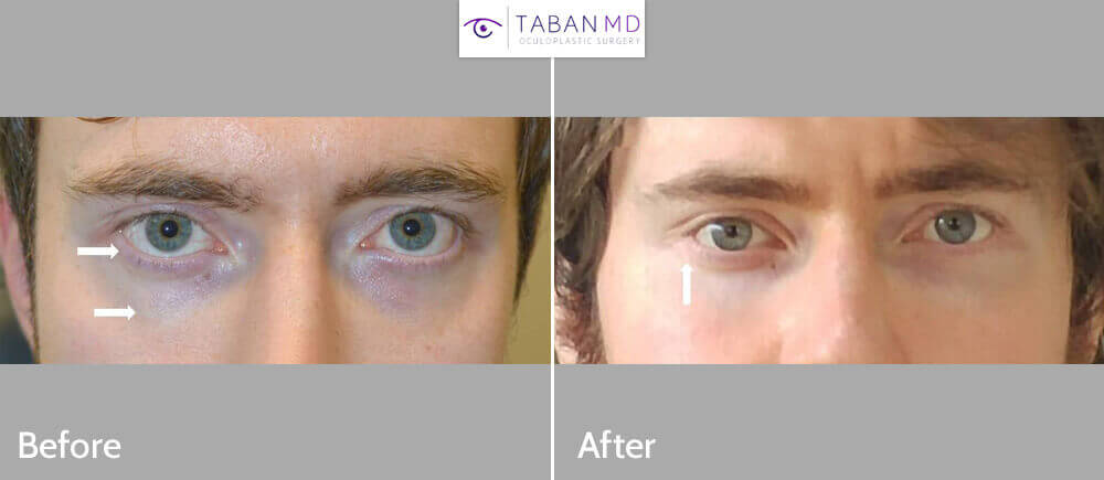 Young man underwent infraorbital rim silicone implant placement and lower eyelid retraction surgery with canthoplasty (almond eye surgery) to create more almond shaped or hunter eyes.
