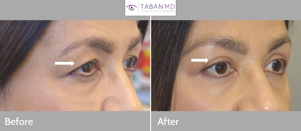 Woman with tired eye appearance due to saggy upper eyelids and brows, underwent upper blepharoplasty and pretrichial lateral brow lift.