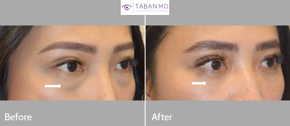 Beautiful young Asian woman, appearing tired due to under eye bags and dark circles, underwent scarless transconjunctival lower blepharoplasty with eye fat repositioning. Note more youthful eye appearance.