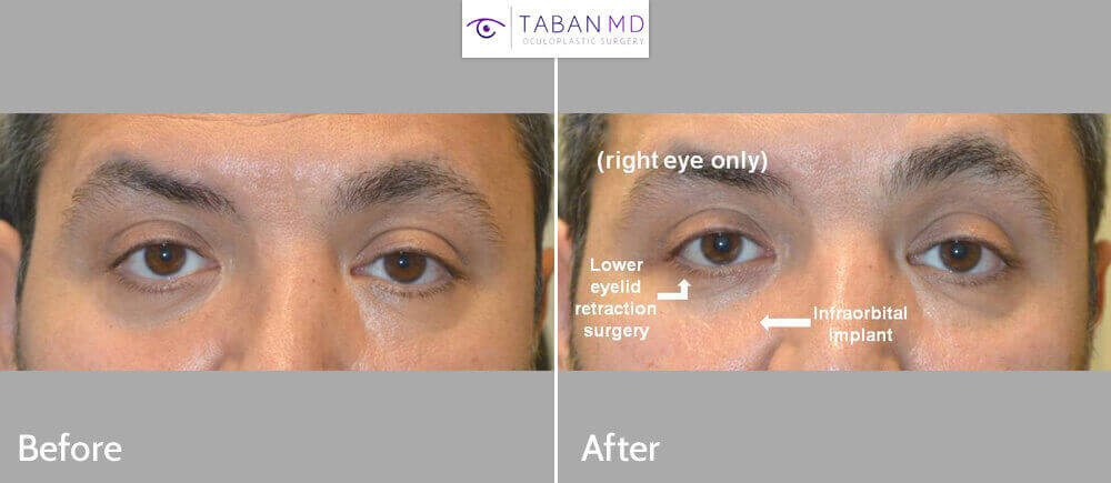 This man was bothered by lower eyelid and under eye asymmetry due to previous right eye trauma and fracture. He underwent right infraorbital rim silicone implant and lower eyelid retraction surgery. Note improved eye symmetry.