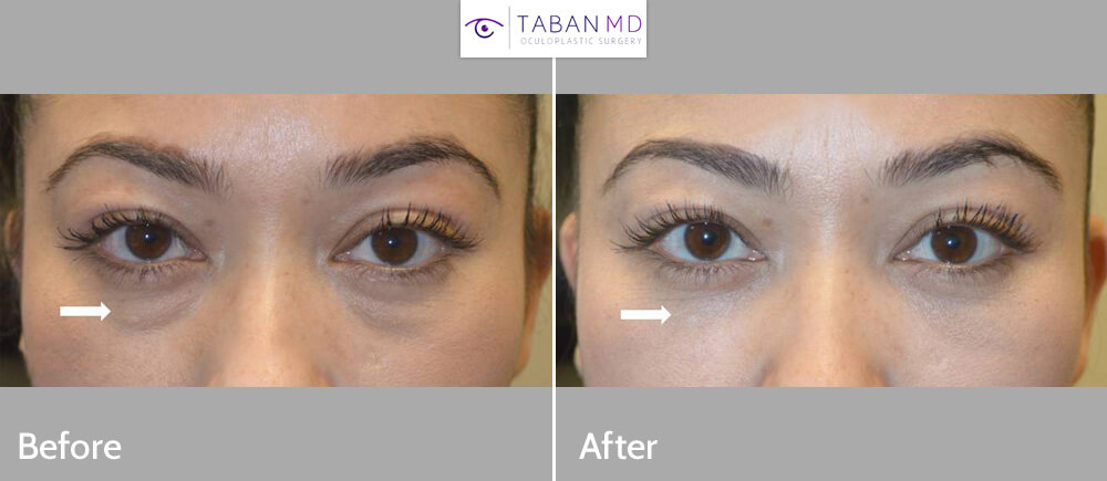 Before/after photos of a beautiful woman who underwent scarless lower blepharoplasty (transconjunctival technique with fat repositioning) to correct under eye fat bags.