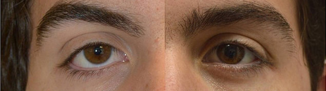 18-year-old male, with congenital lower eyelid retraction with negative canthal tilt and droopy upper eyelids underwent almond eye surgery including lower eyelid retraction surgery (with internal alloderm spacer graft), canthoplasty, and upper eyelid ptosis surgery. Before and 3 months after cosmetic eye transforming surgery photos are shown.