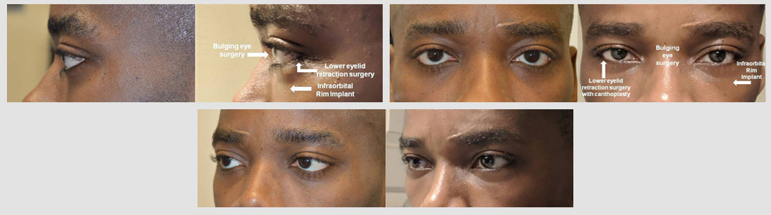 30 year old African American man, with congenital droopy lower eyelids (lower eyelid retraction with negative canthal tilt) and bulging eyes and maxillary hypoplasia with sad tired eye appearance, underwent lower eyelid retraction surgery with canthoplasty, scarless orbital decompression bulging eye surgery, and infraorbital rim silicone implant. His before and after selfie photos are shown. Note change to more almond-shaped, upturned eye appearance with positive canthal tilt.
