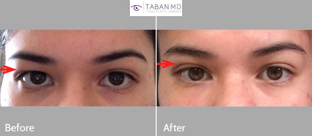 Eye Asymmetry Before and After