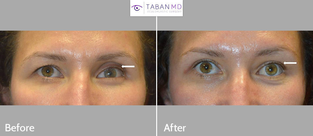 Young woman, with prosthetic (fake) left eye with eye asymmetry, underwent asymmetric upper blepharoplasty and left upper eyelid filler injection along with new prosthesis.